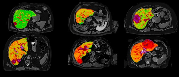Quantitative MR images of the liver from six patients presenting with liver cancer produced by Perspectum's LiverMultiScan which will be used in a new study led by National Cancer Centre Singapore.    Image credit Mole DJ et al. Plos One. 2020;15(12)e0238568