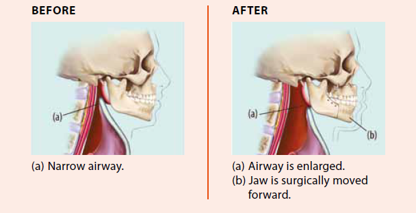 Enlarging of airway after jaw is surgically moved forward, National Dental Centre Singapore