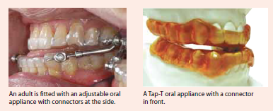 An adjustable oral appliance with connectors at the side, A Tap-T oral appliance with a connector in front, by NDCS
